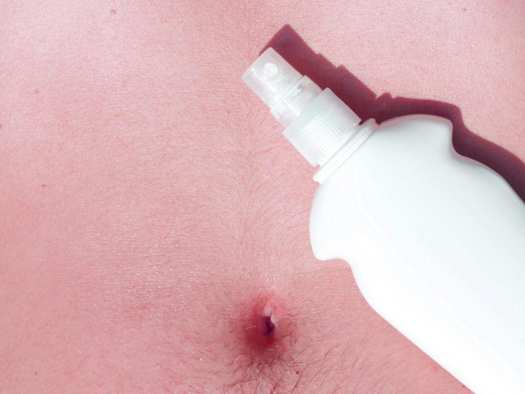 sunburn pics for website